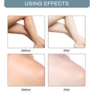 Body Creams Armpit Whitening Cream Between Legs Knees Private Parts Whitening Formula Armpit Whitener Intimate Bleach Bellezon